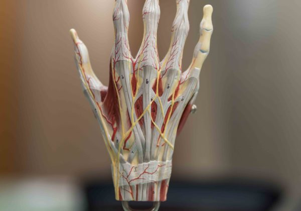 Hand/Upper Extremity